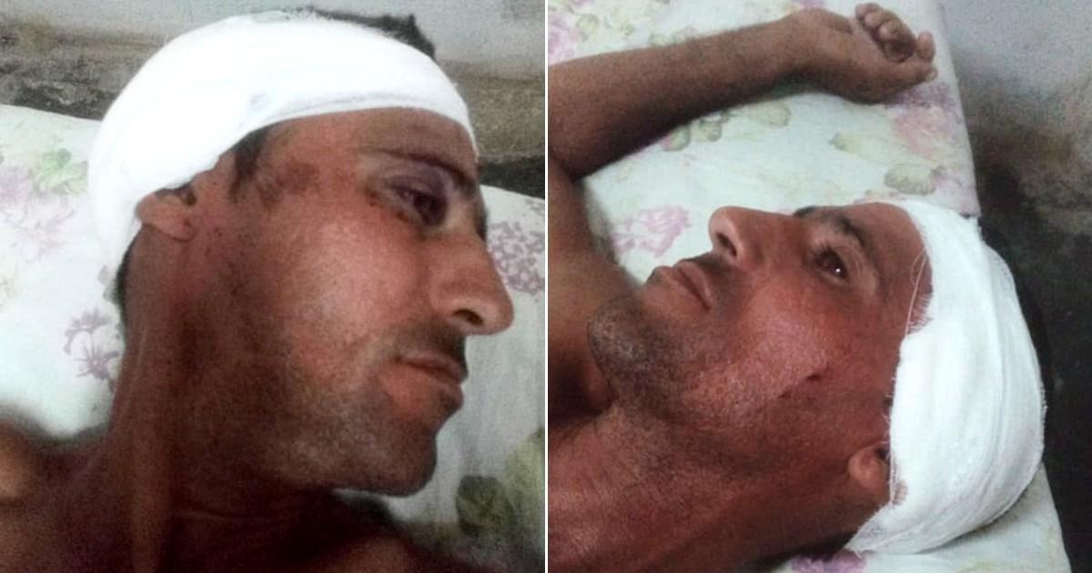 Un joven cubano con lesión en la cabeza tras ser golpeado por la policía en Villa Clara