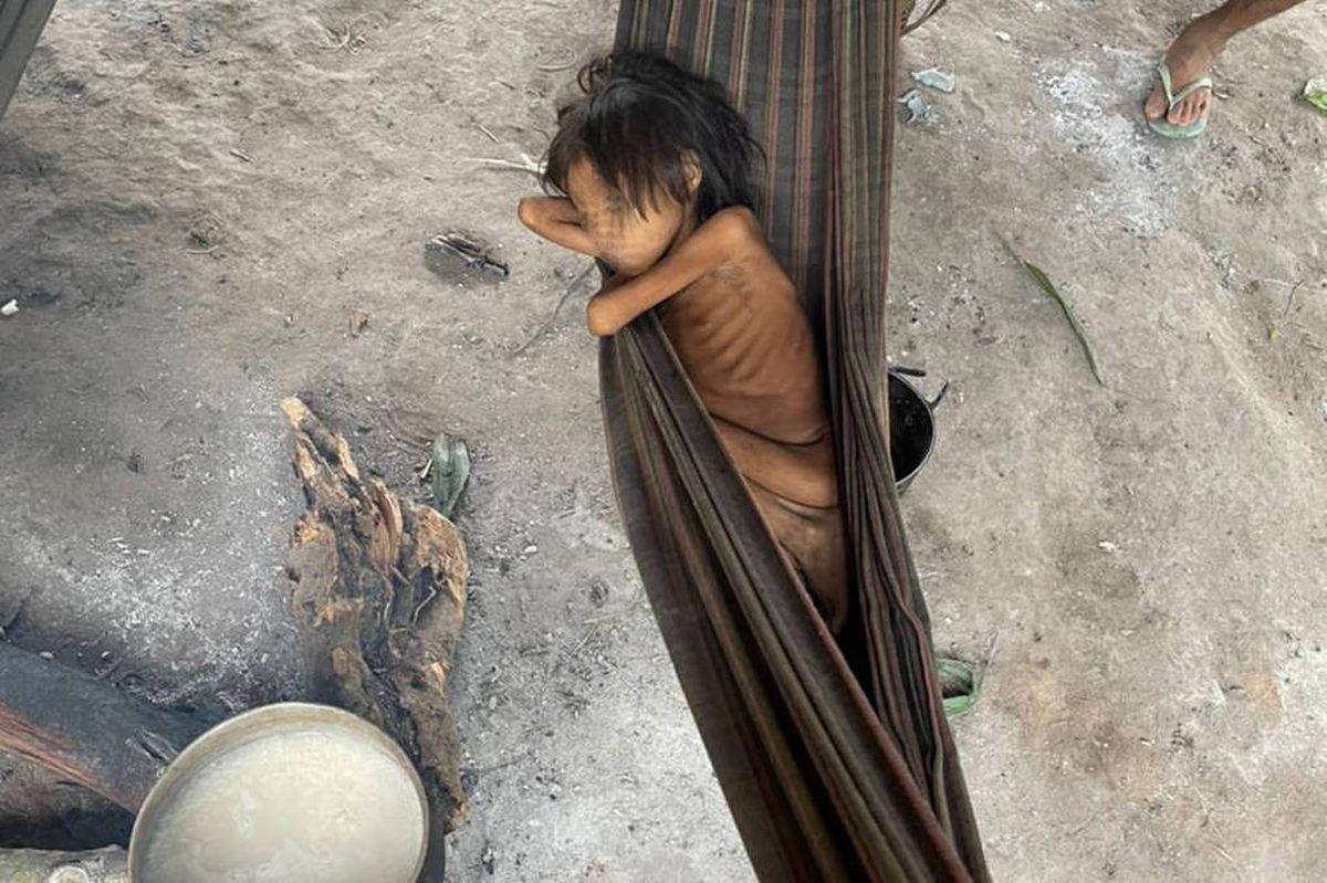 Amazonas: 8 años y 12 kilogramos: la niña que es símbolo del abandono de Yanamami en Brasil    Internacional